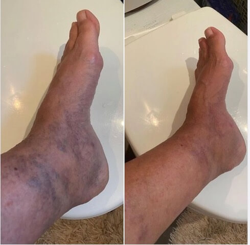 Beth Greer's old soccer injury to her foot and ankle was going to require surgery. But Beth has been able to avoid that surgery due to the significant improvement in the swelling and massive varicose veins, shown in these photos, after using LifeWave X39® stem cell activating patches for three months.