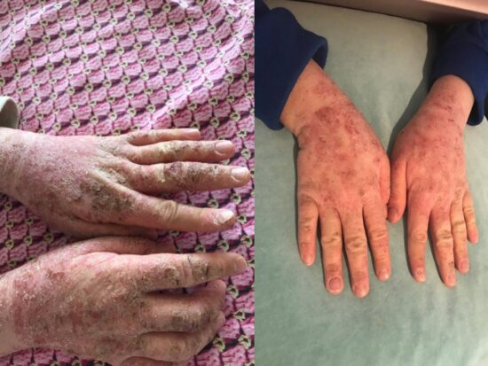 Two images showing severe atopic eczema on the hands of an 11 year old girl, and her much-improved hands after using the X39 patch daily for one month