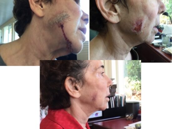 Photos showing the bad surgery scar on the face of Beth's friend which doctors said would take a year bottom photo showing a nearly healed scar after just 21 days of wearing a LifeWave X39® patch.